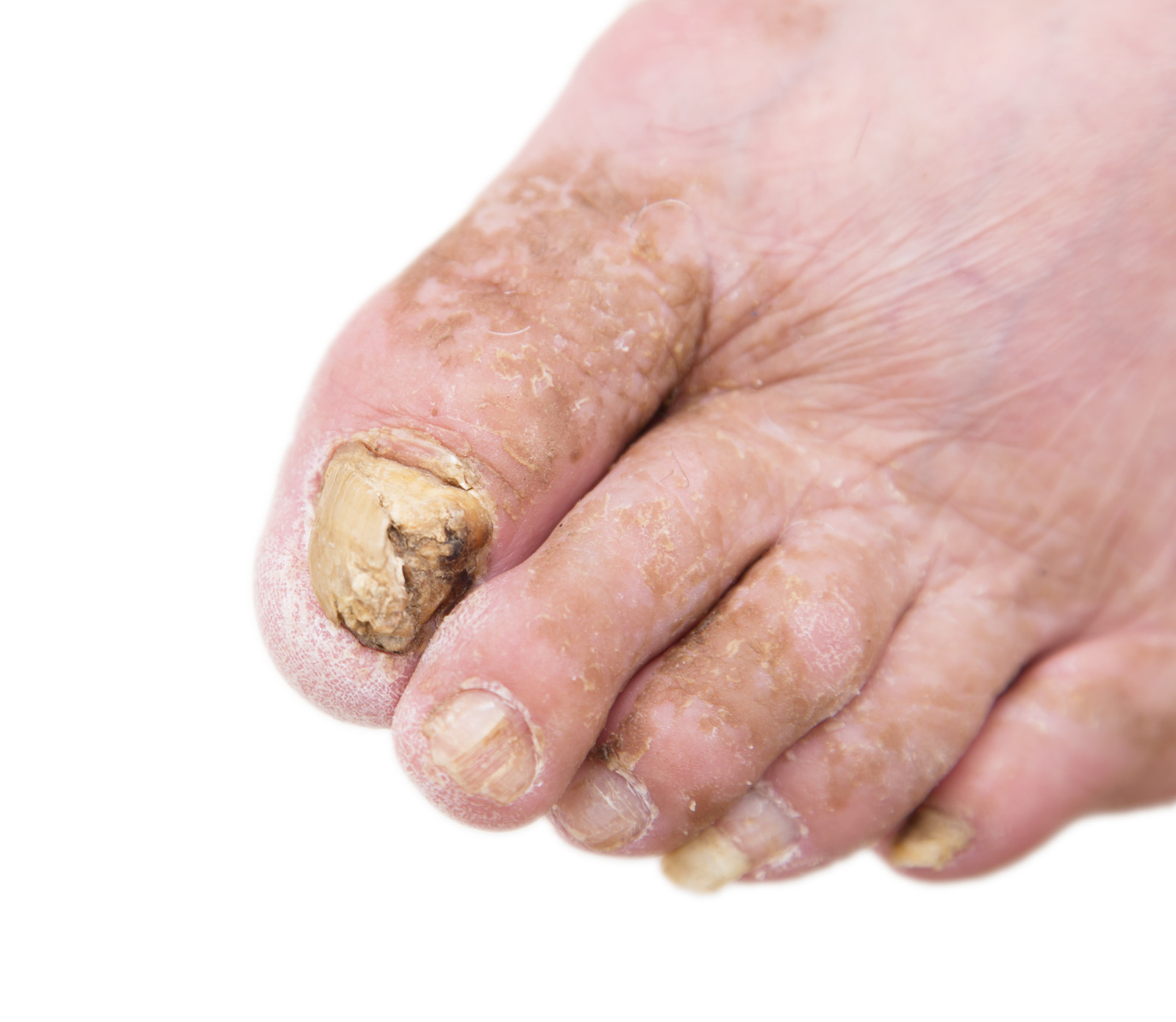 Spotting The Signs Of A Nail Fungus Infection  Maisha Health. Classic Signs Of Stroke. Wizard Oz Signs. Bingo Signs. Parallel Signs. Ultrasound Signs. Starbound Signs Of Stroke. Lyric Signs Of Stroke. Slip Signs